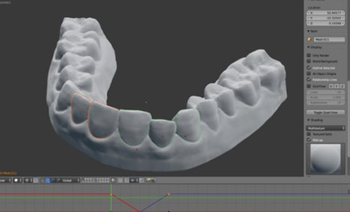 3D printing plastic braces for $60